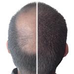 przed i po kmax